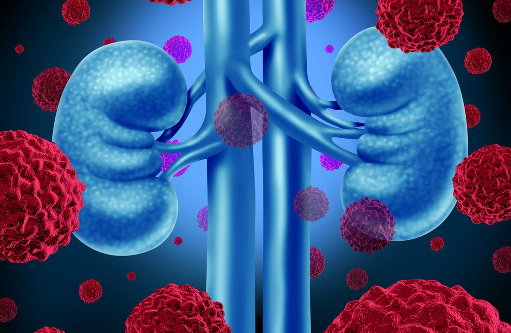 Invokana Kidney Cancer Lawsuit